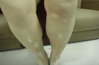 腿部白癜风如何治疗